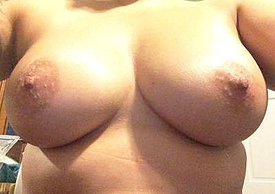 Areola bumps breast augmentation questions and answers