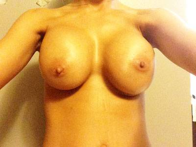 Breast augmentation questions and answers asymetry after surgery