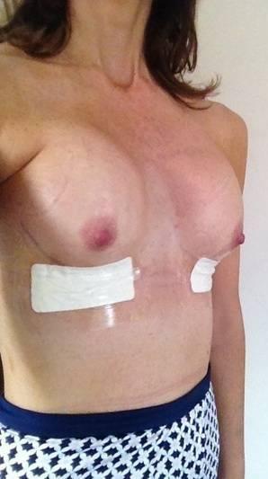nude-diabetic-swelling
