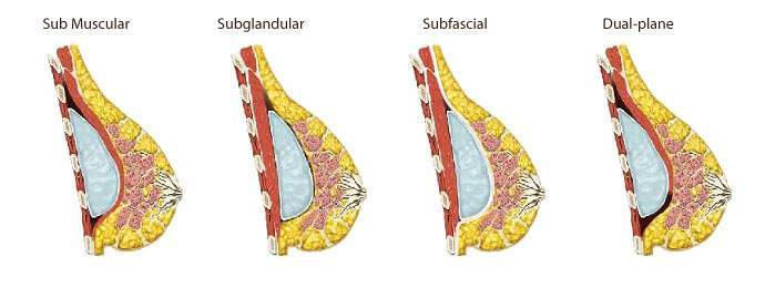 Breast implant placement Subglandular Subfascial Sub Muscular and Dual-plane