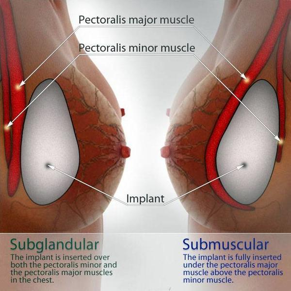 Breast-implant-position Subglandular and Submuscular
