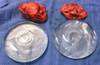 Saline breast implant rupture and new breast implants