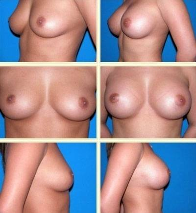 600cc Breast implants before and after pictures