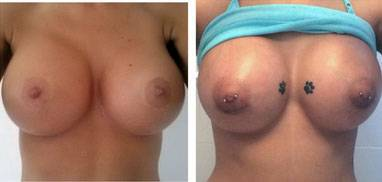 Before and after pictures of breast augmentation (15)