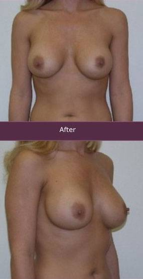 Before and after pictures of breast augmentation (17)