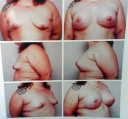 Before and after pictures of breast augmentation (20)
