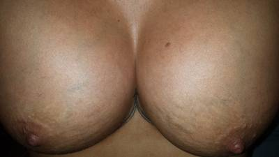 Before and after pictures of breast augmentation (23)