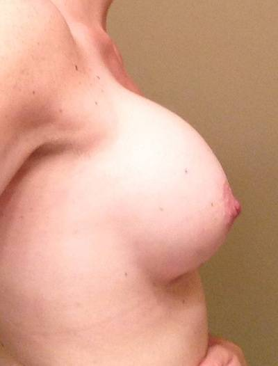 Before and after pictures of breast augmentation (27)
