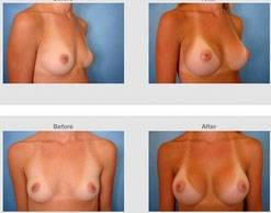 Before and after pictures of breast augmentation (29)