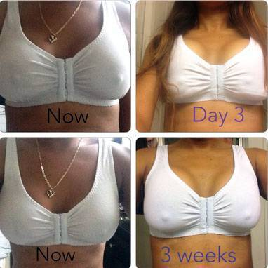 Week After Breast Augmentation 66