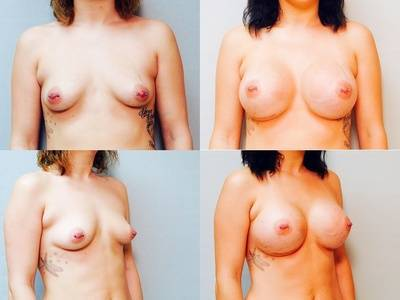 Before and after pictures of breast augmentation 325cc breast implants
