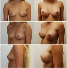 Before and after pictures of breast augmentation 32a to 350cc