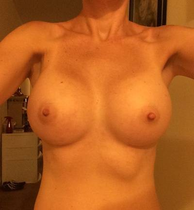 Before and after pictures of breast augmentation (35)