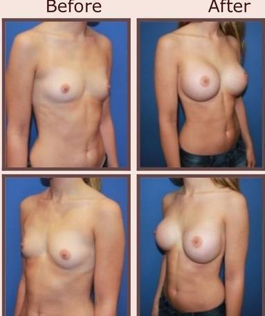 Before and after pictures of breast augmentation (4)