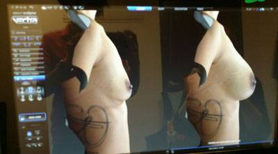 Before and after pictures of breast augmentation 425cc breast implants