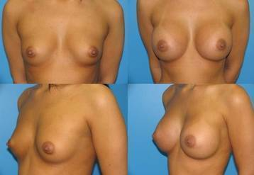 Before and after pictures of breast augmentation (5)