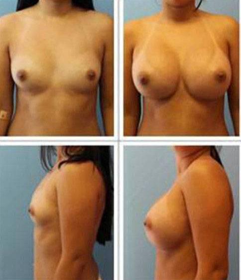 Before and after pictures of breast augmentation (6)
