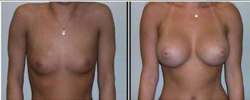 Before and after pictures of breast augmentation (9)