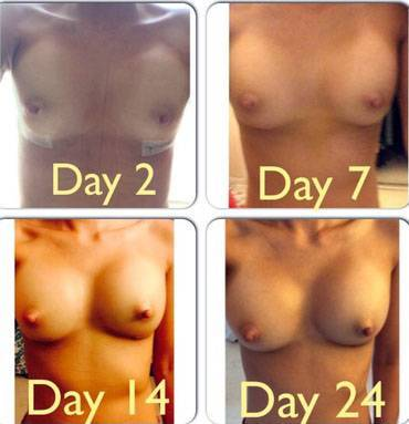 Before and after pictures of breast augmentation day 24 recovery