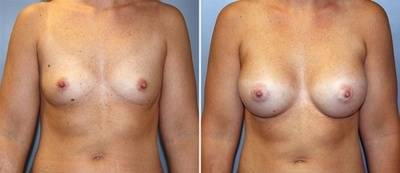 Before and after pictures of breast augmentation gallery of best cosmetic surgeons