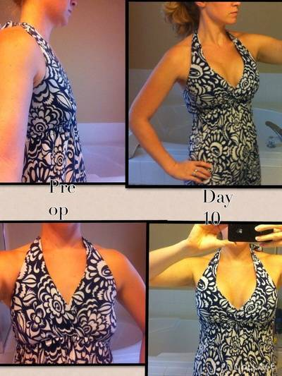 Before and after pictures of breast augmentation on day 10