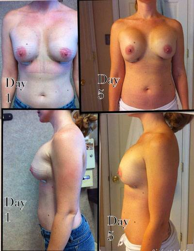Before and after pictures of breast augmentation on day 5