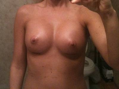 Before and after pictures of breast augmentation online