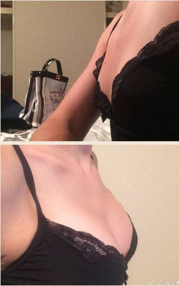 Before and after pictures of breast augmentation operation