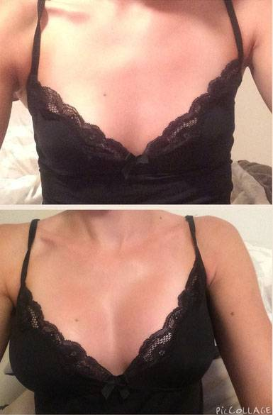Before and after pictures of breast augmentation procedure