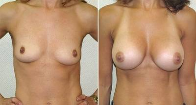 Before and after pictures of breast augmentation stars