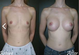 Before and after pictures of breast augmentation surgery