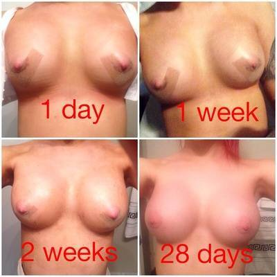Before and after pictures of breast augmentation swelling on 28 days