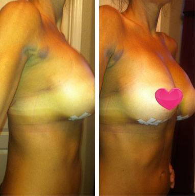 Before and after pictures of breast augmentation under breasts scar