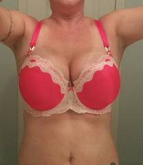 Best breast implants pictures after breast augmentation operation