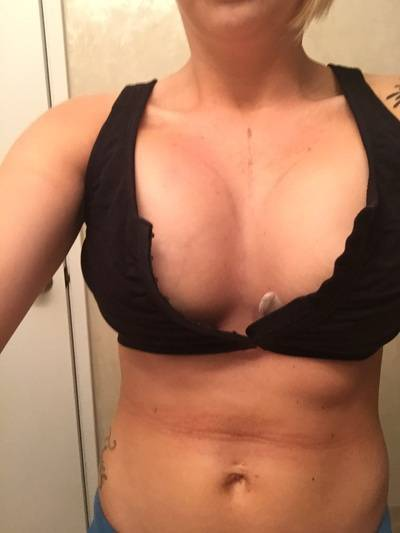 Best breast implants pictures best top surgeons