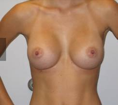 Best perfect breast implants pictures