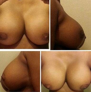 Breast implants before and after pictures (10)