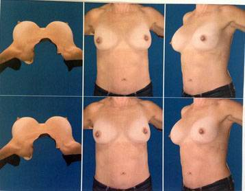 Breast implants before and after pictures (13)
