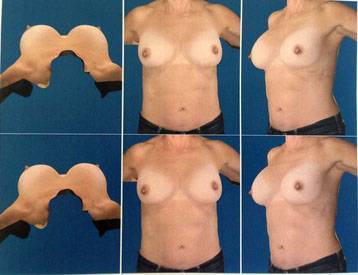 Breast implants before and after pictures (14)