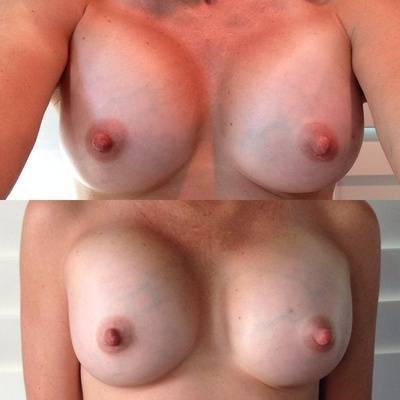Breast implants before and after pictures (21)