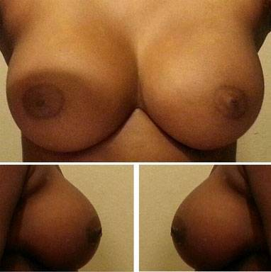 Breast implants before and after pictures (22)