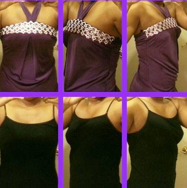 Breast implants before and after pictures (4)