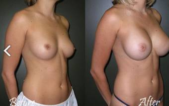 Breast implants operation before and after pictures