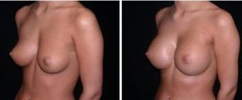 Breast lift and augmentation before and after photos Brisbane plastic surgeons pics