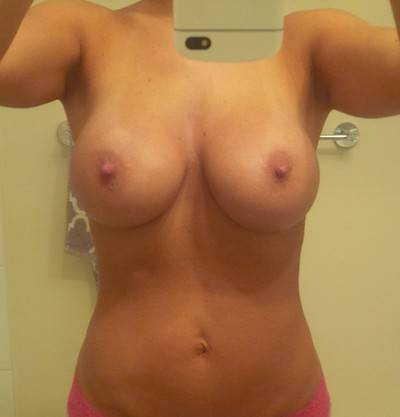 Breast lift and augmentation before and after photos Georgia cosmetic surgeons photos