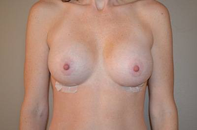 Breast lift and augmentation before and after photos Georgia surgeons images