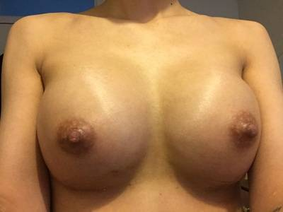Breast lift and augmentation before and after photos Houston Texas cosmetic surgeons