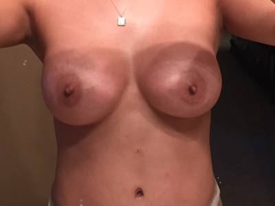 Breast lift and augmentation before and after photos Houston Texas surgeons images