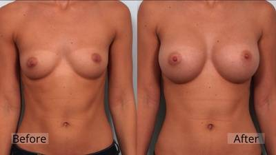 Breast lift and augmentation before and after photos Jacksonville Florida top best surgeons