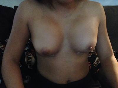 Breast lift and augmentation before and after photos Perth cosmetic surgeons photos